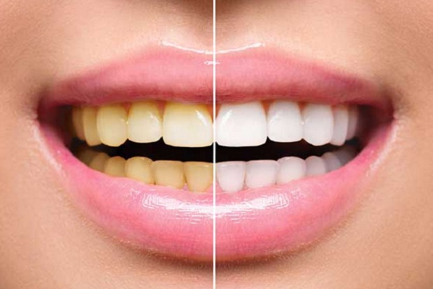 8 Ways To Whiten Your Teeth Naturally Tech2