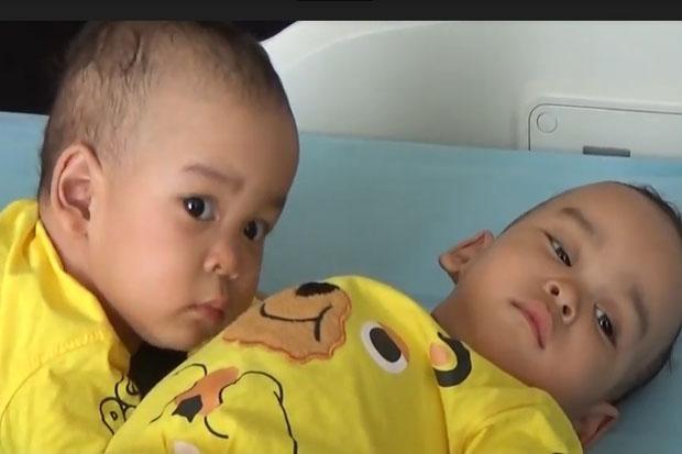 Pasca-Operasi, Bayi Kembar Siam Adam dan Malik Sekarang Menggemaskan